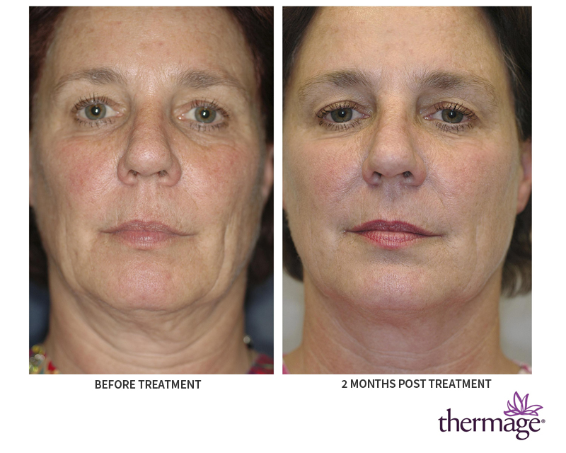Thermage anti aging treatment